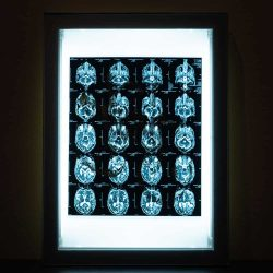 Acroe Brain Scan 1/3