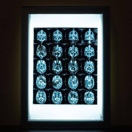 Acroe Brain Scan 1/3