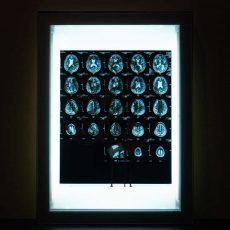 Acroe Brain Scan 2/3