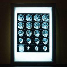 Acroe Brain Scan 3/3